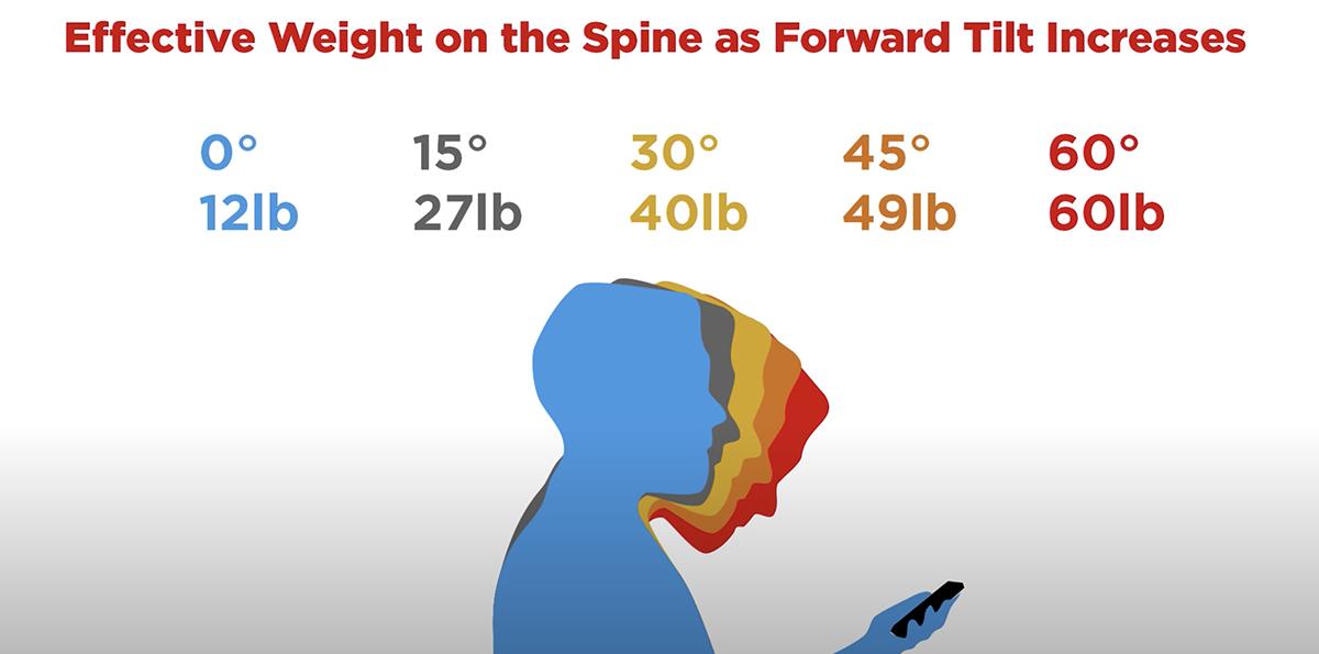 forward neck flexion